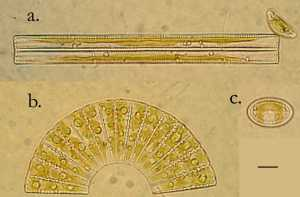 Kilmartin_diatoms